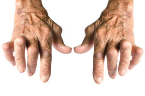 Image of hands with arthritis. Medical marijuana & arthritis